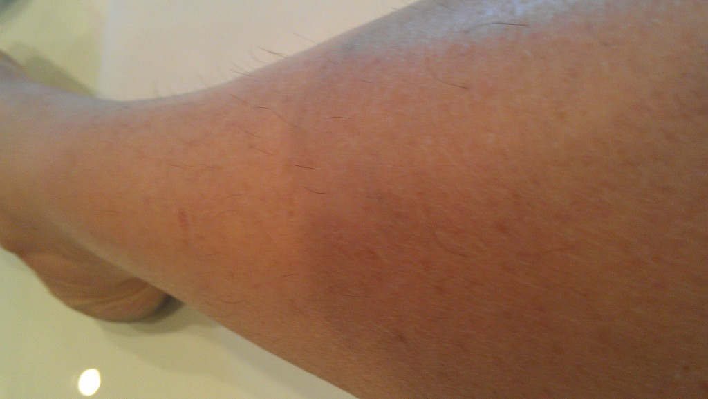 Tria Laser Hair Removal At Home Is It Working The